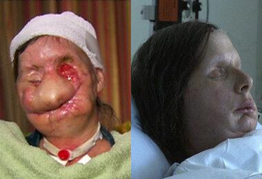 Charla Nash a műtét előtt és után