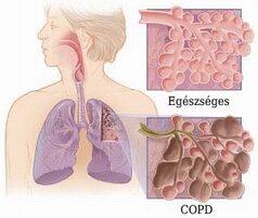 Az egészséges és COPD-s tüdőrészlet