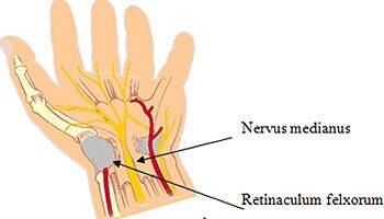 tünetek, amikor a kéz könyökízületei fájnak