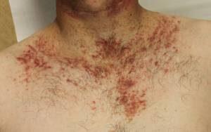 Darier-kór; Kép forrása: Primary Care Dermatology Society