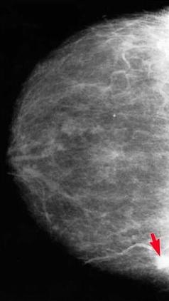 Mammogrammon ábrázolódó emlőtumor; Forrás: http://z.about.com/d/breastcancer