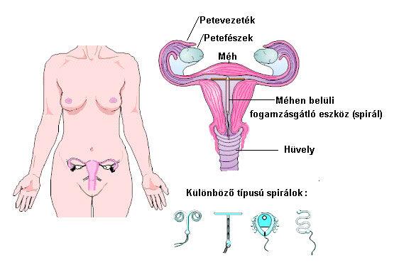 Méhen belüli fogamzásgátló eszköz (spirál)