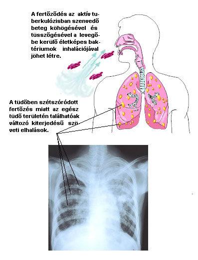 Tüdőtuberkulózis