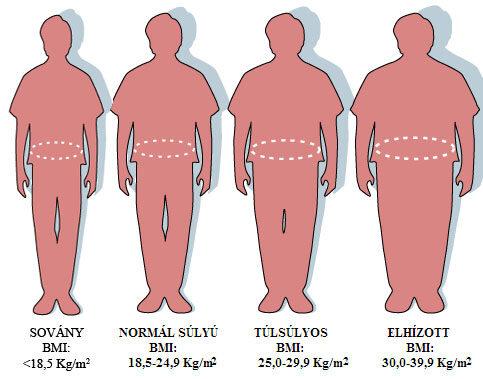 Felnőttkori elhízás