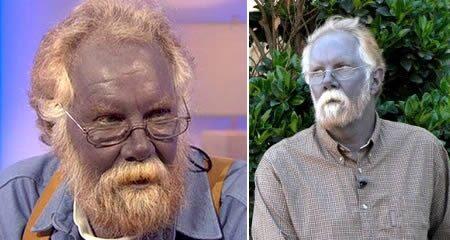 Argyria, kék bőr