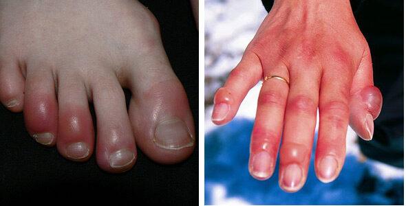 artrózis kezelése a kezén doa vállízület gyógyszeres kezelése