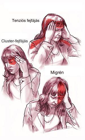 Cluster-fejfájás - Fejfájás típusok jellegzetes tünetei