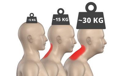 Az előrehelyeződő fej a fizika törvényeinek megfelelően saját súlyának többszörösével terheli az alátámasztási felületet, azaz nyakunkat