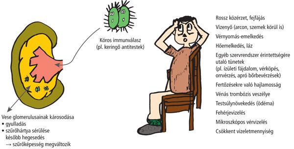 A vese glomerulusainak károsodása