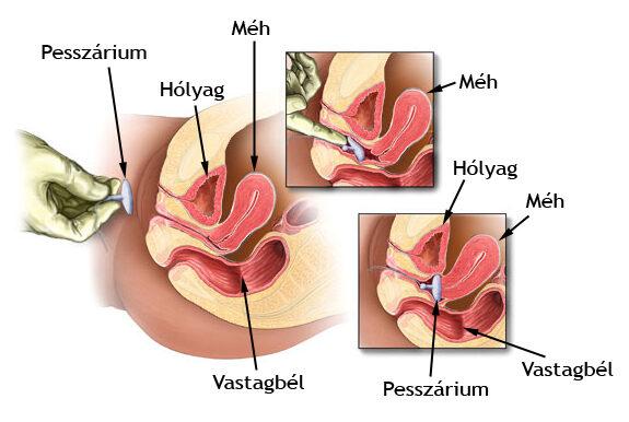 Inkontinencia oka, kezelése - Nőgyógyászati Központ