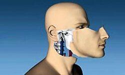 Sikeres arcátültetés az Egyesült Államokban