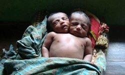 Kétfejű bangladesi kisfiú született