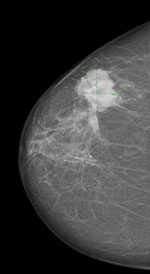 Mammográfia - Daganatos mell