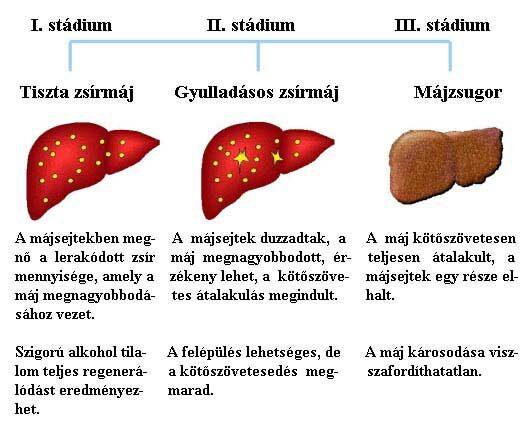 Az alkohol indukálta májzsugor kialakulásának stádiumai: tiszta zsírmáj, májgyulladás, májzsugor Forrás: www.gi.org
