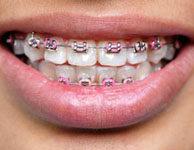 Beragasztott fogszabályozás; Forrás: www.prevention.com