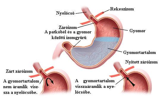 Gastrooesophagealis reflux betegség.; Forrás: www.gastro.vcu.edu