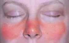 Pillangószárny erythema; Forrás: www.allaboutarthritis.com