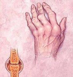 Reumás gyulladás a kézen; Forrás: http://www.die-forschenden-pharma-unternehmen.de