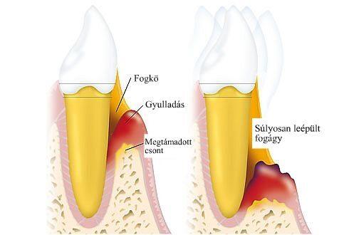 Parodontitis - A betegség kialakulása