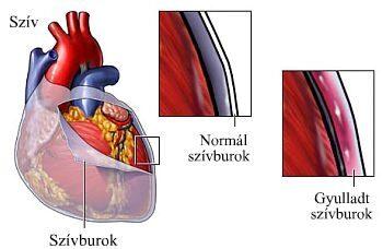 Pericarditis, szívburokgyulladás)