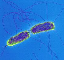 A hastífusz kórokozója, a Salmonella typhi