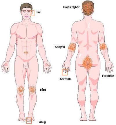 Hogyan lehet gyorsan eltávolítani a psoriasis súlyosbodása