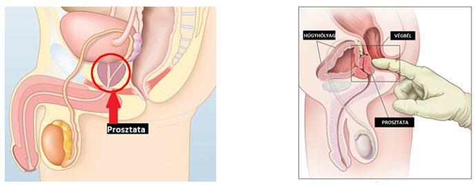 a prosztata rosszindulatú daganata Krónikus termékgyulladás