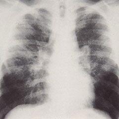 BHL röntgenfelvétel