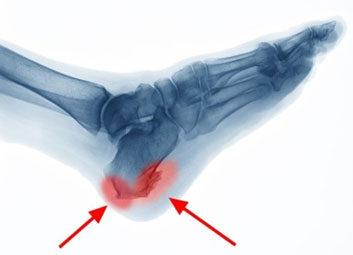 Csontkinövés az Achilles-ín (bal odali nyíl), illetve a talpi bőnye (jobb oldali nyíl) tapadási pontján