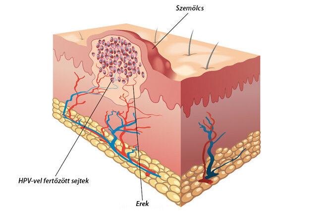 féreg az ágyban körömféreg lárvák fejlődése a petéből