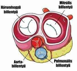 Bakteriális endocarditis (szívbillentyű-gyulladás)