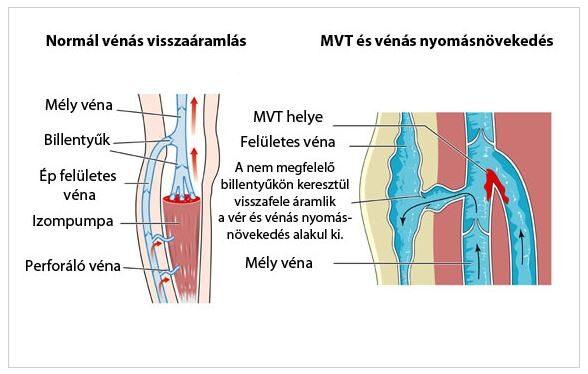 trombus és magas vérnyomás)