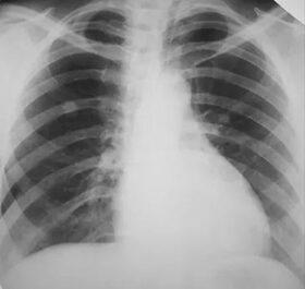 Tüdőrák röntgenfelvételen