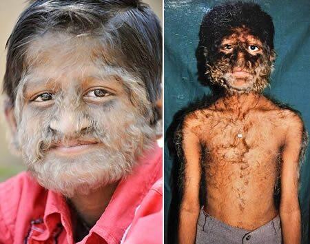 Hypertrichosis: fiú fokozott szőrnövekedéssel