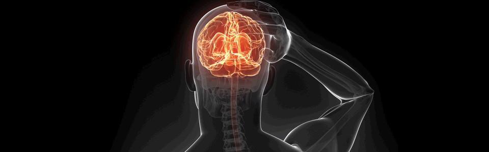 Stroke (Agyvérzés és agyi érelzáródás)