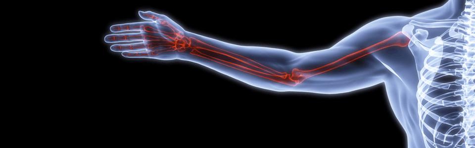 Csontritkulás ágens. Cukorbetegség megelőzése és diétája