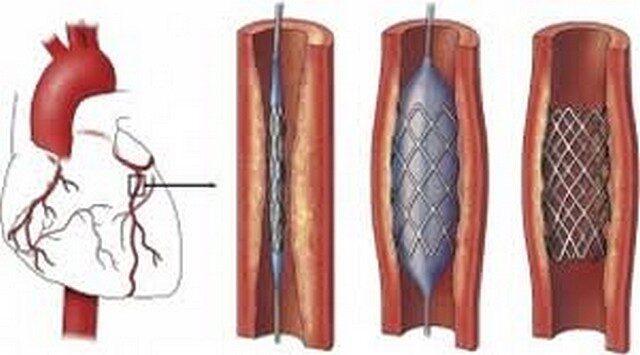 stentelés magas vérnyomás esetén