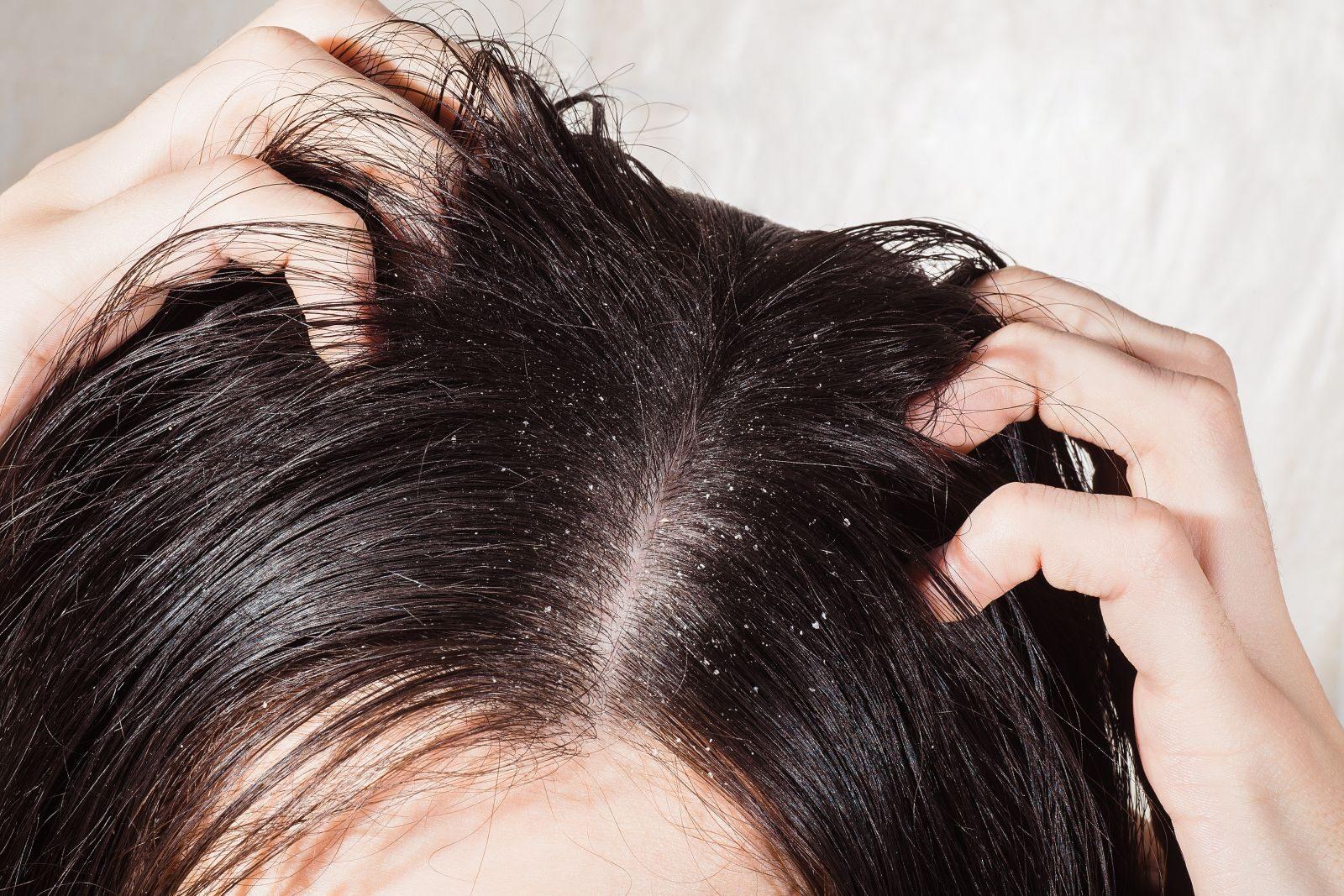 Vörös foltok és korpásodás a fején - Tumor