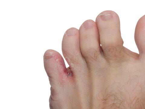 lábujjak közötti kipállás kezelése