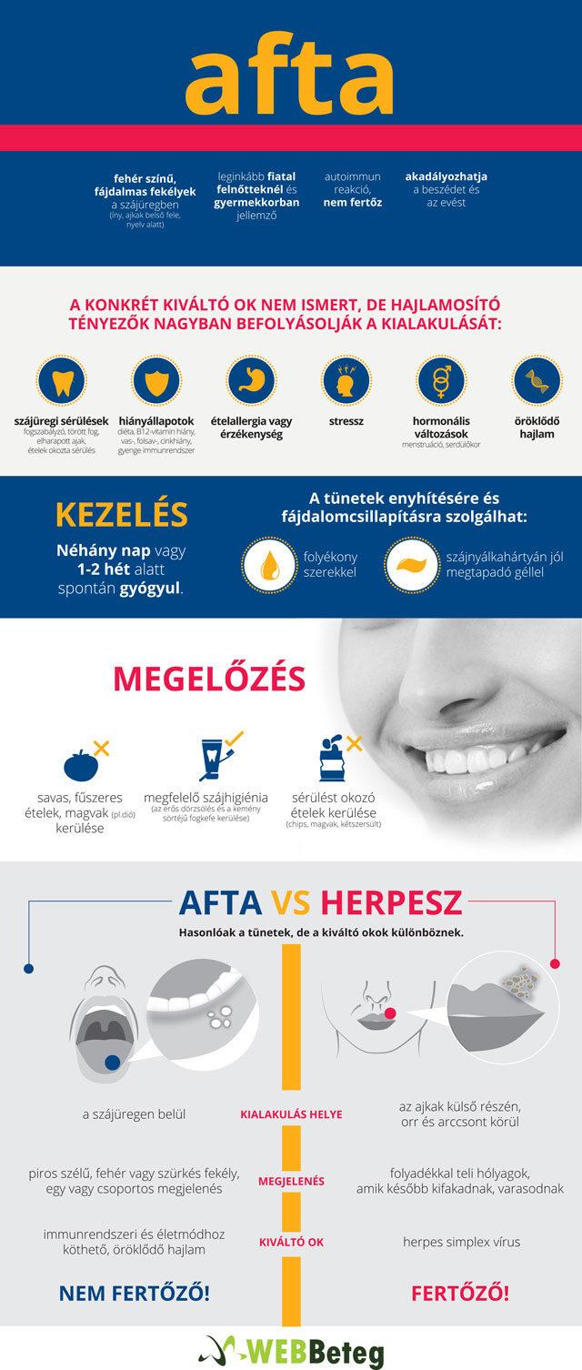 Afta infografika