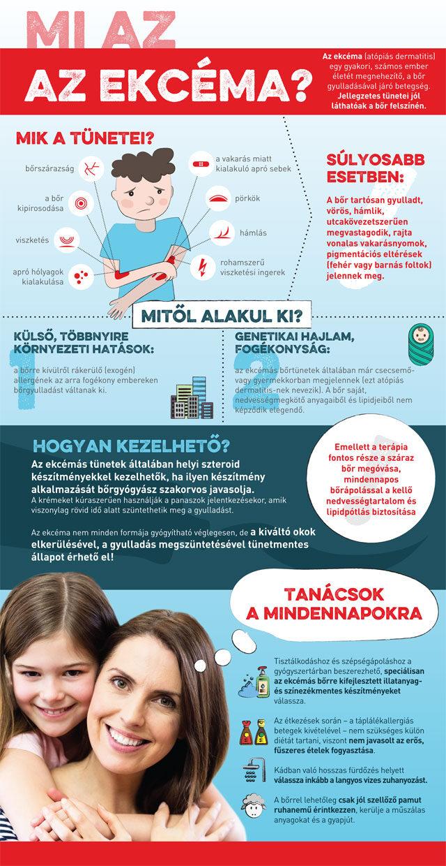 Ekcéma infografika