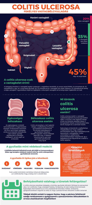 Fekélyes vastagbélgyulladás infografika