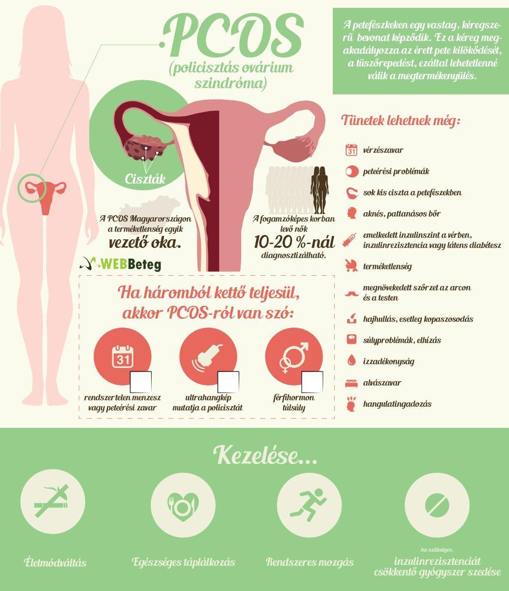 PCOS infografika