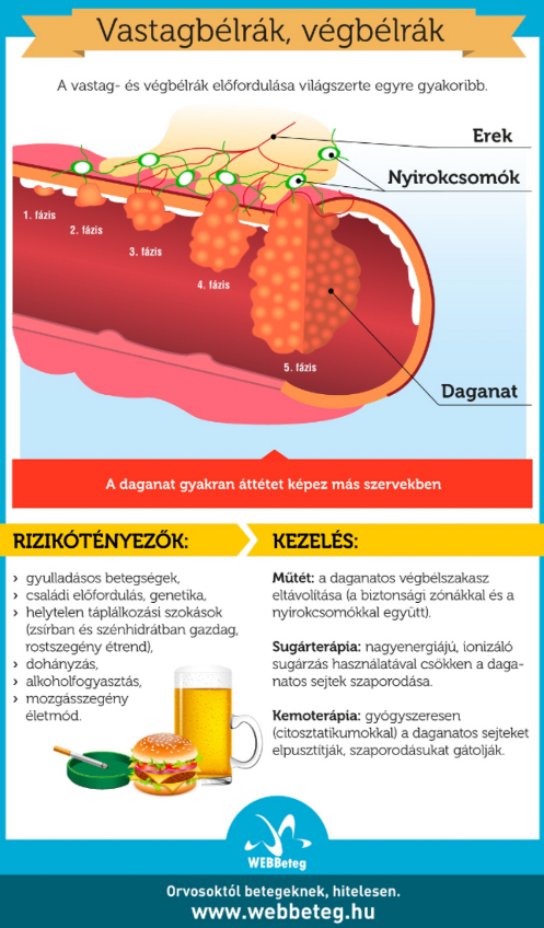 Béldaganatok infografika