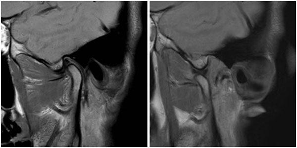 MR-felvétel az állkapocsízületről; Kép forrása: Diagnostica CT és MR központ