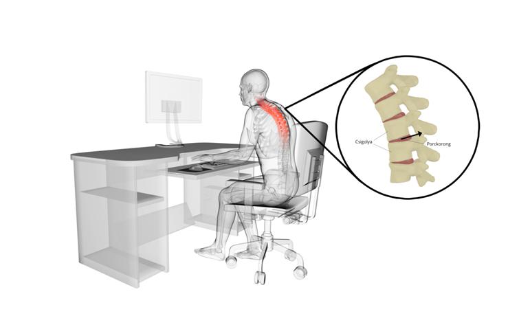 Az ülőmunka hatása a gerincoszlopra
