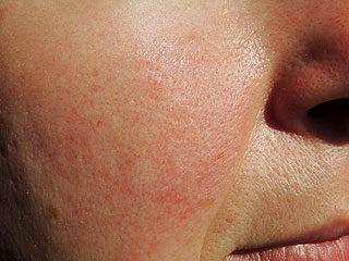 mi okozza a vörös foltok megjelenését az arcon hogyan lehet eltávolítani a vörös anyajegyet az arcon