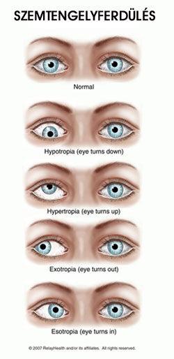 Gyenge látás a módszer szerint, A tompalátás kialakulása és kezelése