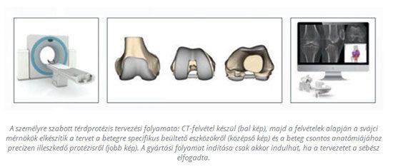 Térdprotézis-beültetés