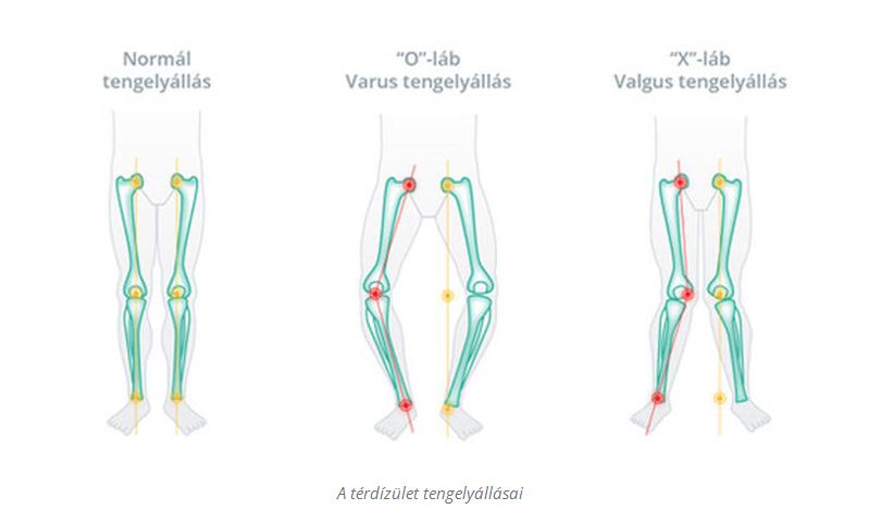 fájdalom a protézis térdében